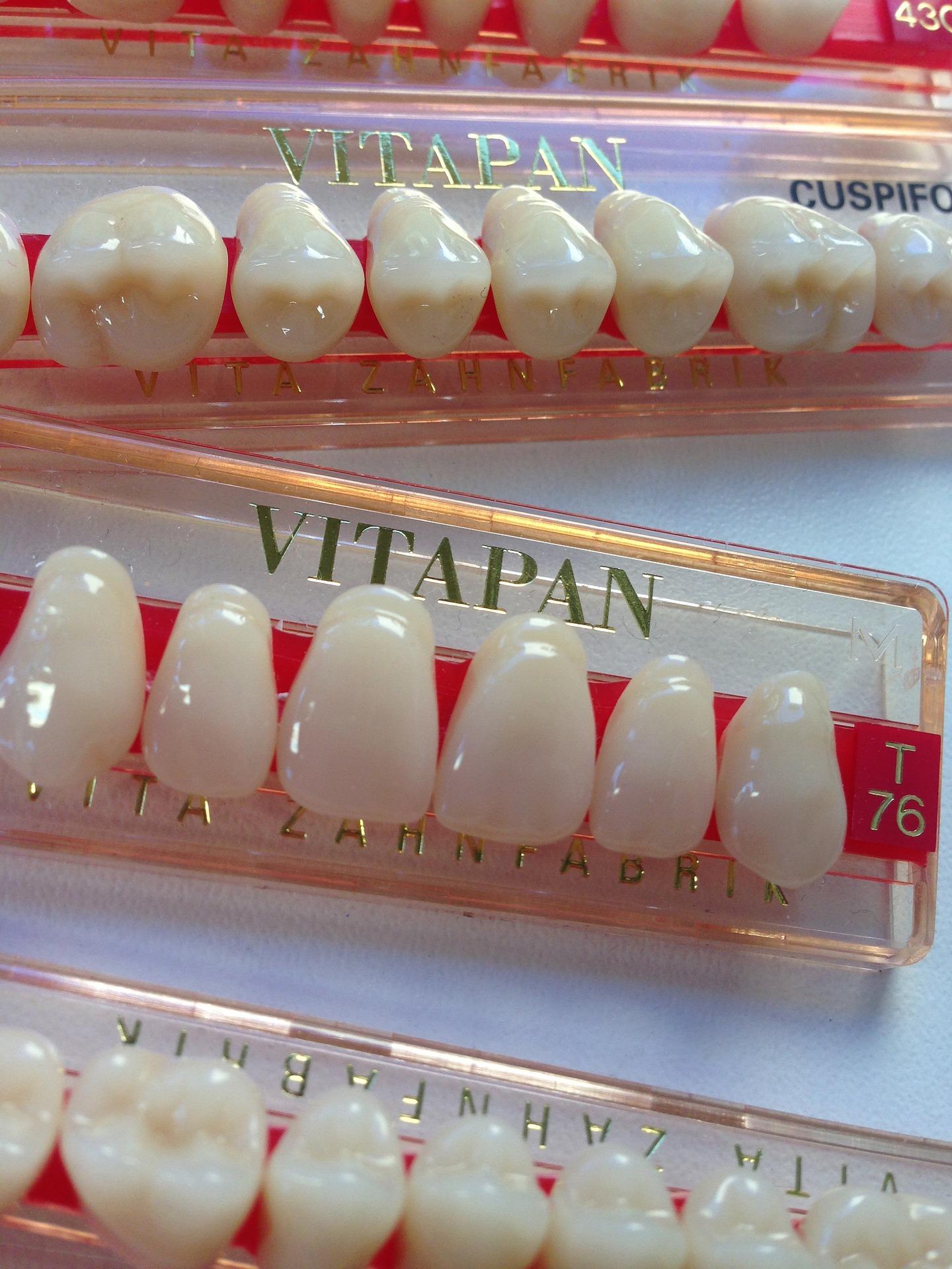 Ważne informacje o implantach stomatologicznych