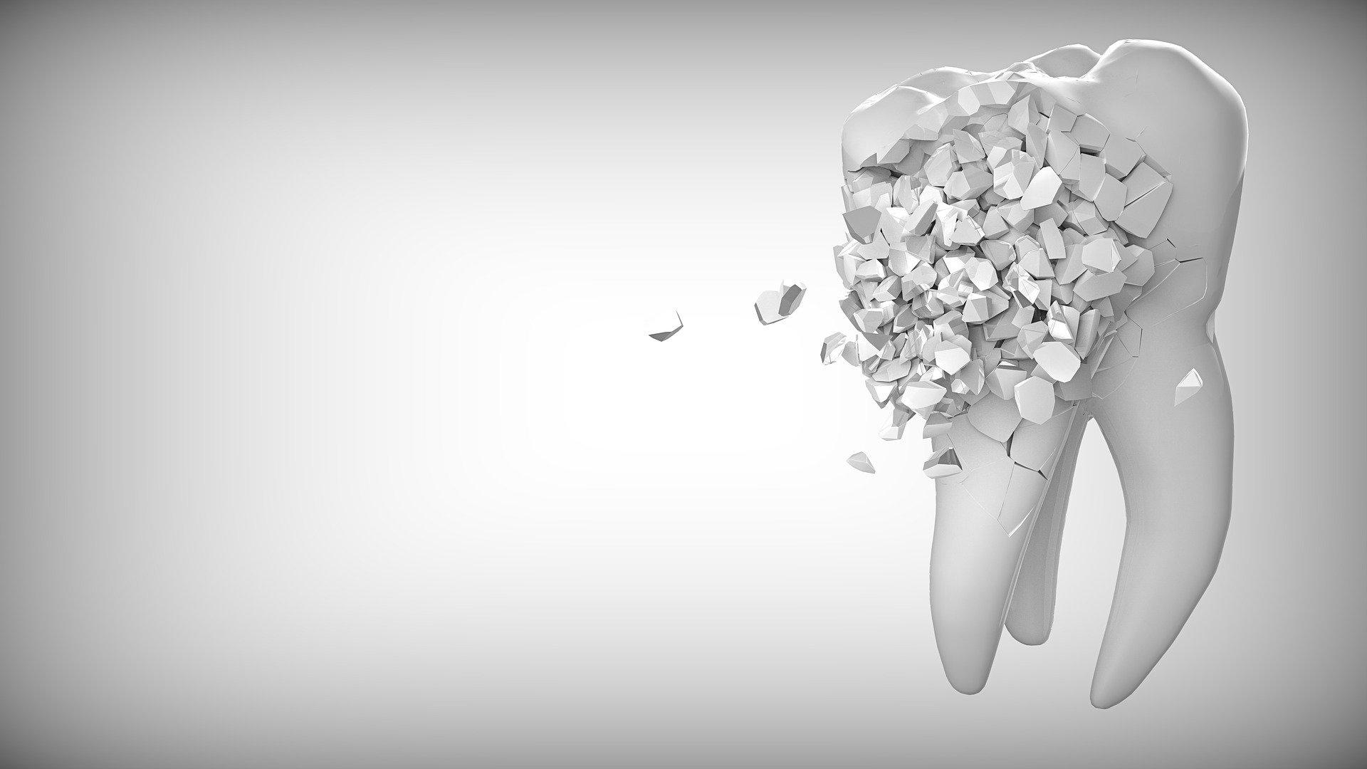 Jak złagodzić ból zęba?